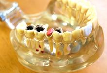大きな虫歯は大きく削ることになります